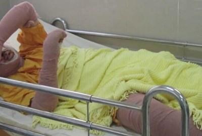 Сара лежи в болницата с тежки последствия от изгарянията, които си причини, след като се самозапали.