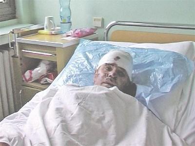 Благоев се възстановява в болница. СНИМКА: АВТОРЪТ