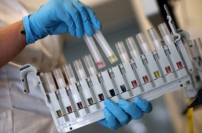 Разработката на антитела е изключително скъпа, но правителствата ще ги дотират, за да стане лечението достъпно за населението.  СНИМКИ: РОЙТЕРС
