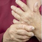 При артрит тройно скача рискът от тромбоза и емболия