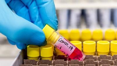Две жени от Врачанско са заразени с коронавирус