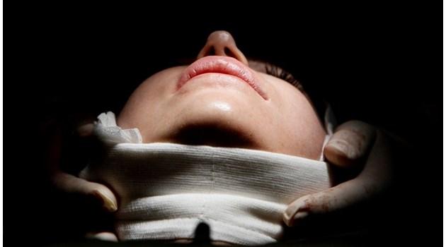 Пластичен хирург за подарък - хит е разцепен език, хиалурон и ботокс за Коледа