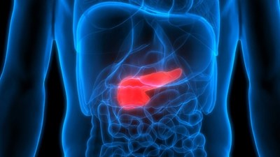 Диабетици вече живеят с изкуствен панкреас