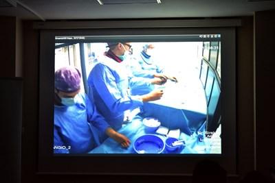 """Екипът поставя един в друг със застъпване 11 стента """"от здраво до здраво"""" в артерията с аневризма .От учебната зала в болницата лекари от цялата страна виждаха и чуваха в реално време как работи тандемът Хенкес - Сираков, като една от камерите показваше и какво се случва вътре в мозъчния кръвоносен съд при """"сглобяването"""" на стентове така, че да изолират патологичното разширение. СНИМКА: Любомира Николаева"""