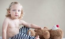 Бурното завръщане на шарките. От 2021 г. в България ще има ваксина срещу варицела
