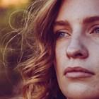 Тънката връзка между хормоналната система и проблемната кожа