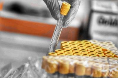 Проби за изследване на коронавируса