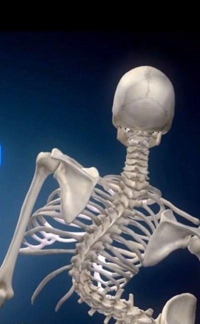 Илюстрацията онагледява как се променя скелетът без лечение.