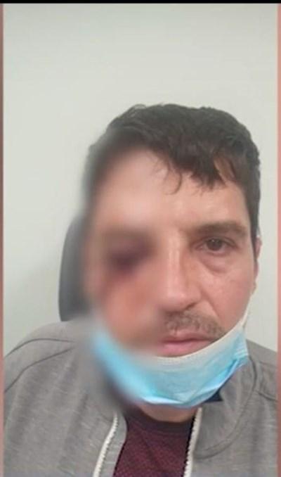 Димитър Ивайлов бил нападнат на 11 юни.