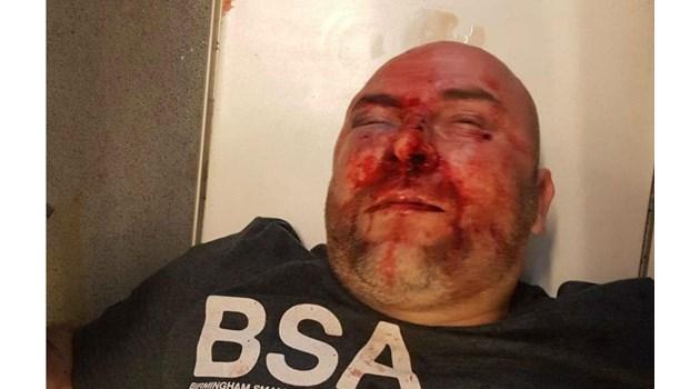 BG гражданин пребит от расисти в Шотландия. 39-годишният Илхан Ахмедов бил със счупен нос и лицева кост