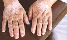 Кожата издава скрити болести