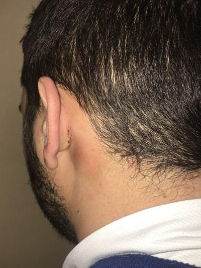 24-годишният Филип се притеснява да покаже лицето си след боя