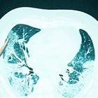 Как COVID-19 уврежда белите дробове?