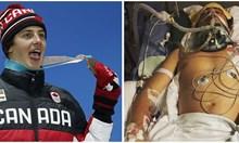 Канадец излиза от реанимация и 11 месеца по-късно спечели медал на олимпиадата
