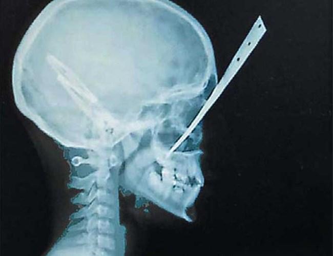 Рентгеновата снимка на Нана.
