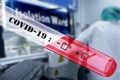 Тест за петнайсет минути открива антитела срещу коронавируса. СНИМКА: Pixabay