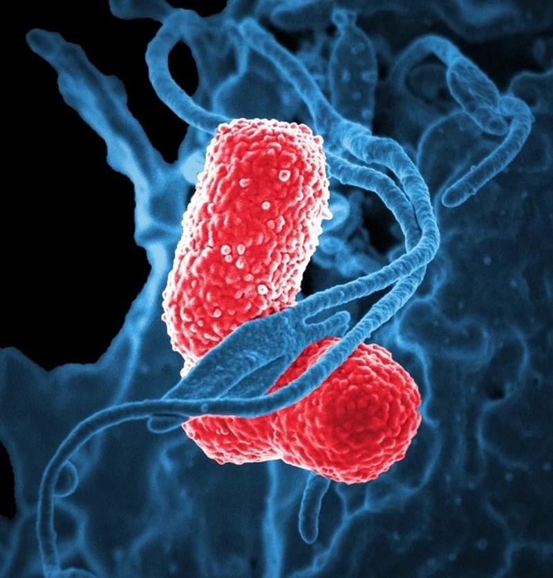 Бактерията, причиняваща пневмония Снимка: Пиксабей