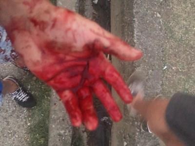 Жертвата показва разрязаната си ръка.