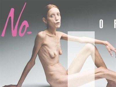 С шокиращ плакат на страдаща от анорексия жена италианският фотограф Оливиеро Тоскани изобрази модните истерии. Плакатите бяха разлепени на билбордове в Милано и пуснати на двойни страници в италианските вестници.  СНИМКА: РОЙТЕРС