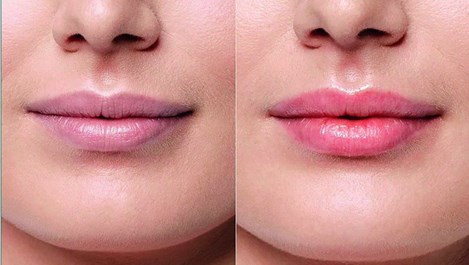 Лазерно подмладяване и увеличаване на устни