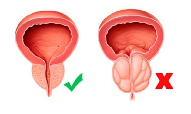 И при простатата размерът е от значение