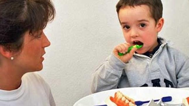 Запечатване на зъбите намали със 75% кариесите на 140 000 деца