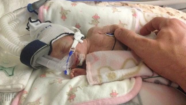 Чудото на Наоми: Бебе се ражда 15 седмици по-рано, оцелява въпреки шанса под 1%