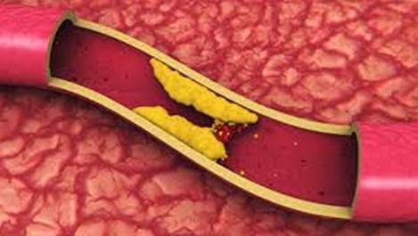 Как да се преборим с лошия холестерол