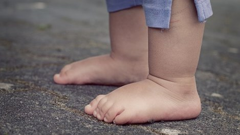 7 средства срещу отекли крака