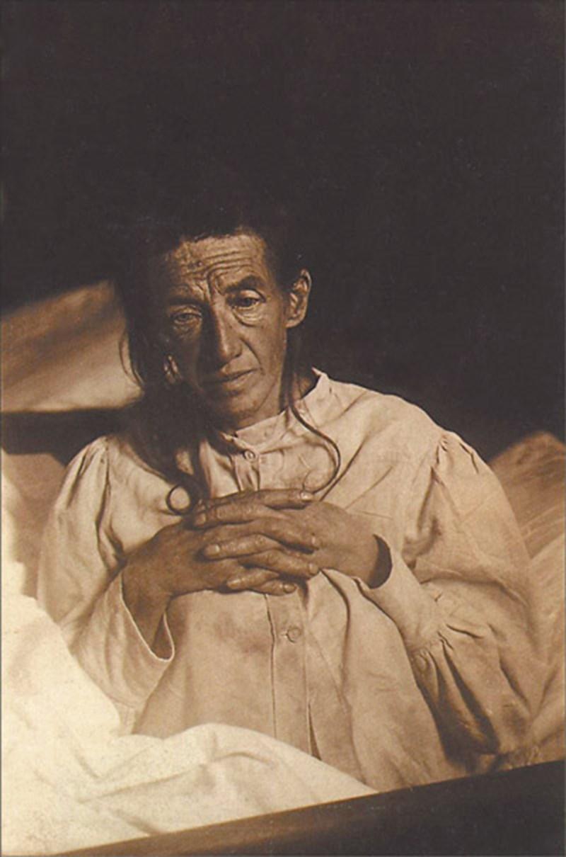 Аугуста Детер е първата в света, диагностицирана с алцхаймер.
