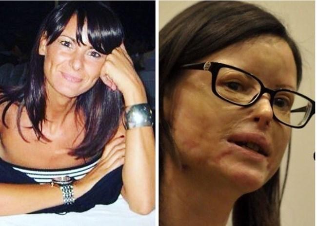 Лучия Анибали преди и след нападението с киселина върху нея