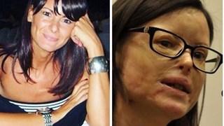Лучия Анибали - лице на жените, станали жертви на насилие