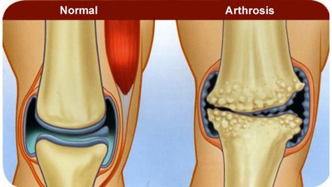 Мускулни и ставни болки по цялото тяло